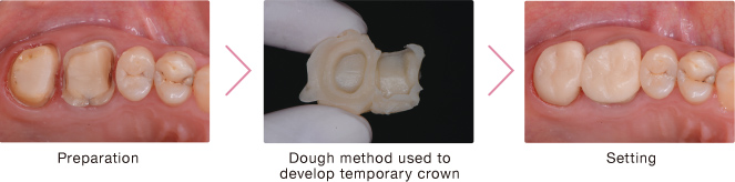 Preparation  Dough method used to develop temporary crown  Setting